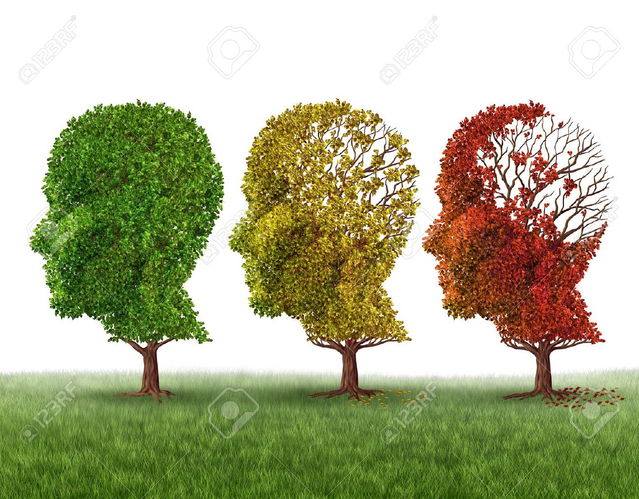 Memory loss and brain aging due to dementia and alzheimer - 38697289