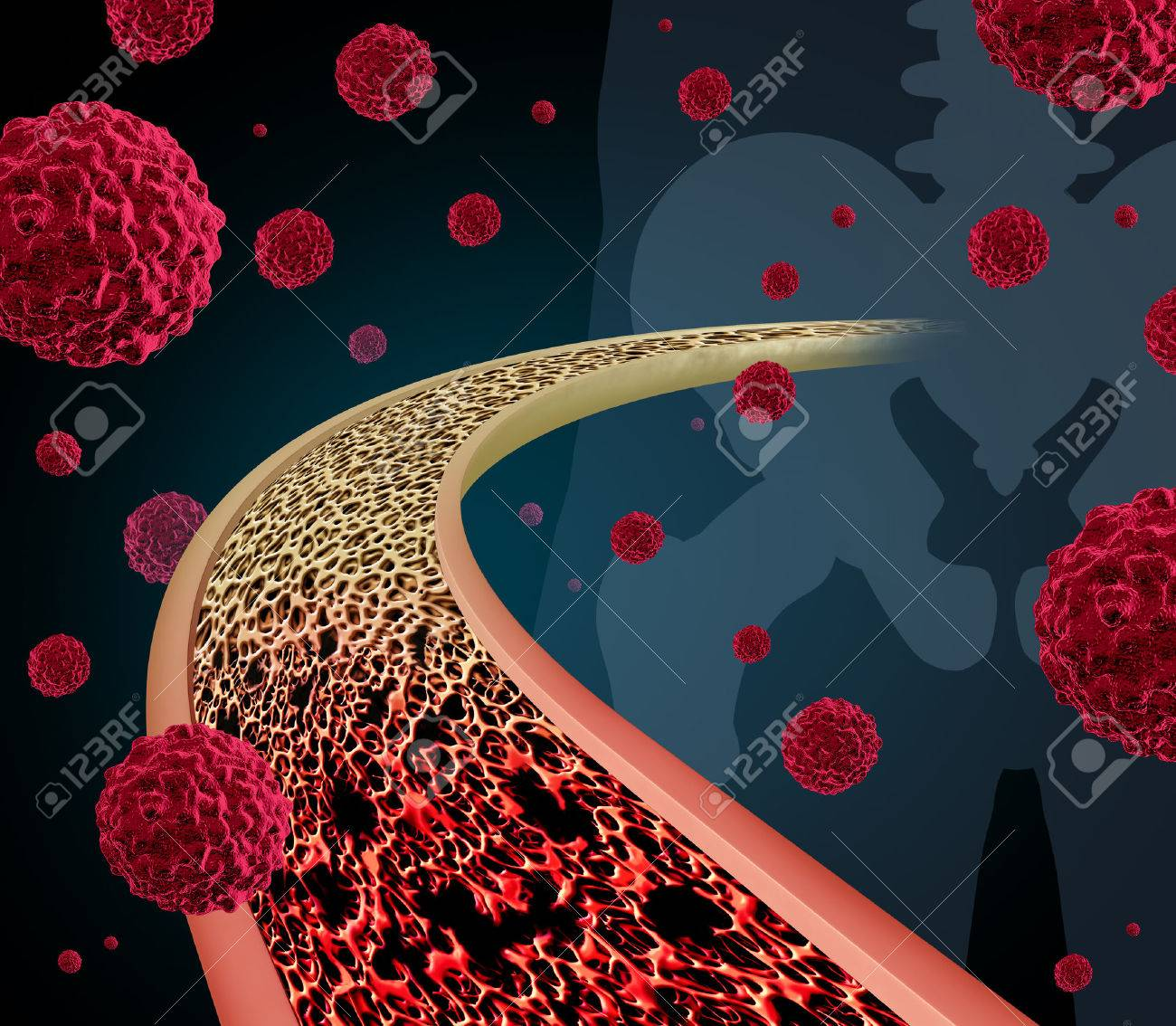 Bone Cancer Concept Illustration As A Close Up Diagram Of The Inside ...