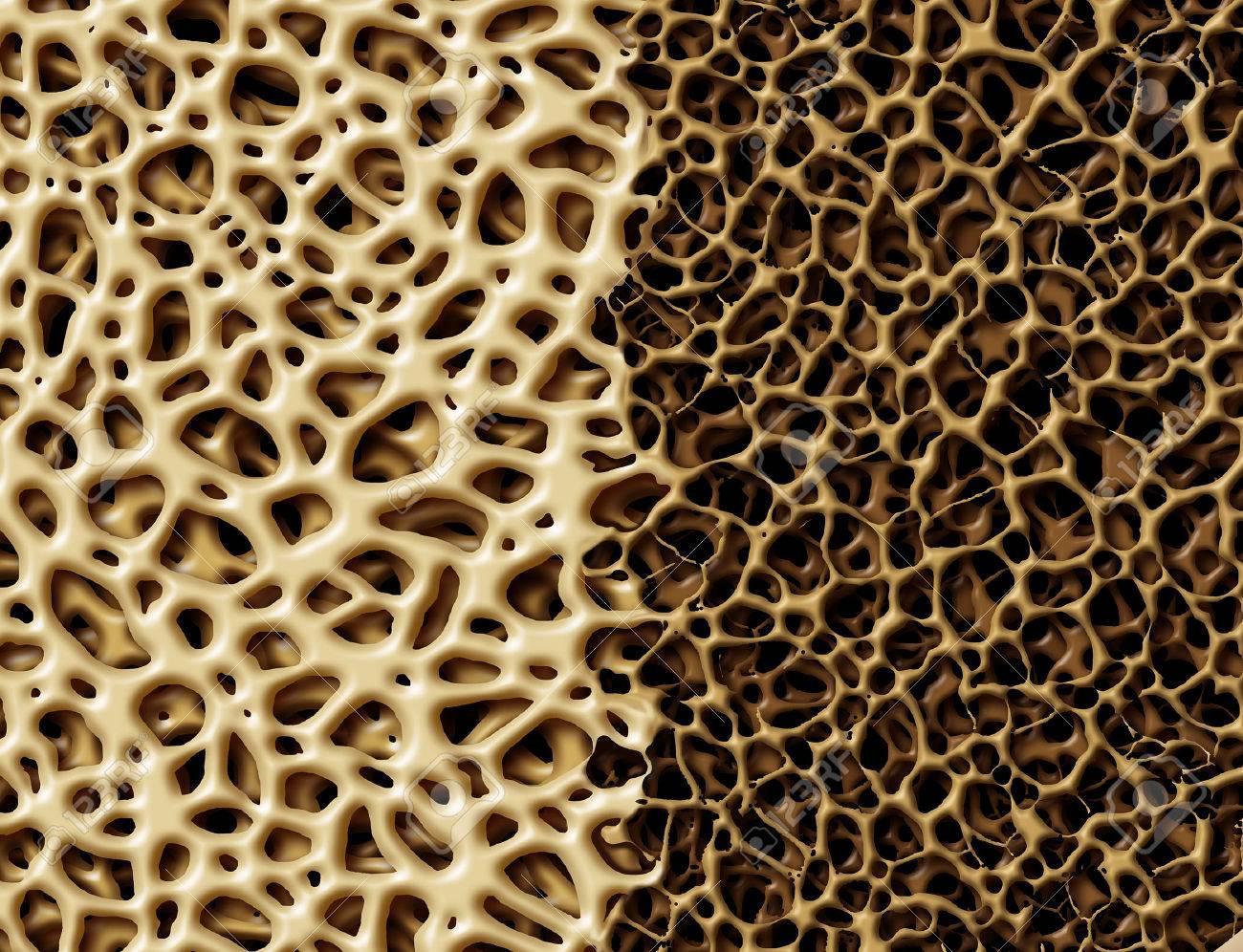 Hueso Con Concepto Osteoperosis Anatomía Médica Como Un Fuerte ...