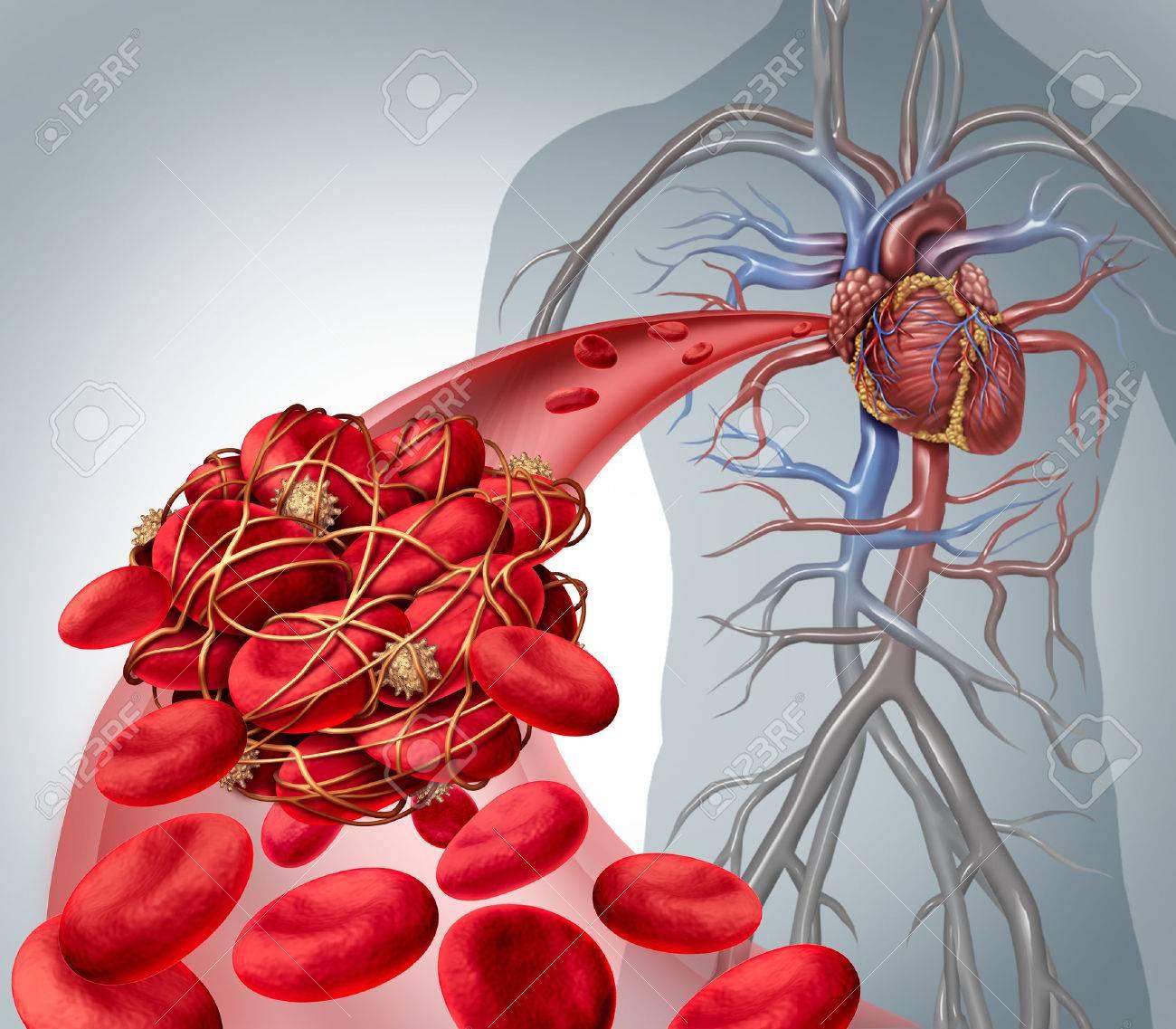 El Riesgo De Coágulos De Sangre Y Coágulos O Trombosis Ilustración ...