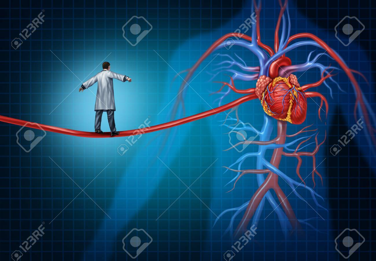 Heart Surgery Concept As A Cardiac Surgeon Walking On An Artery ...