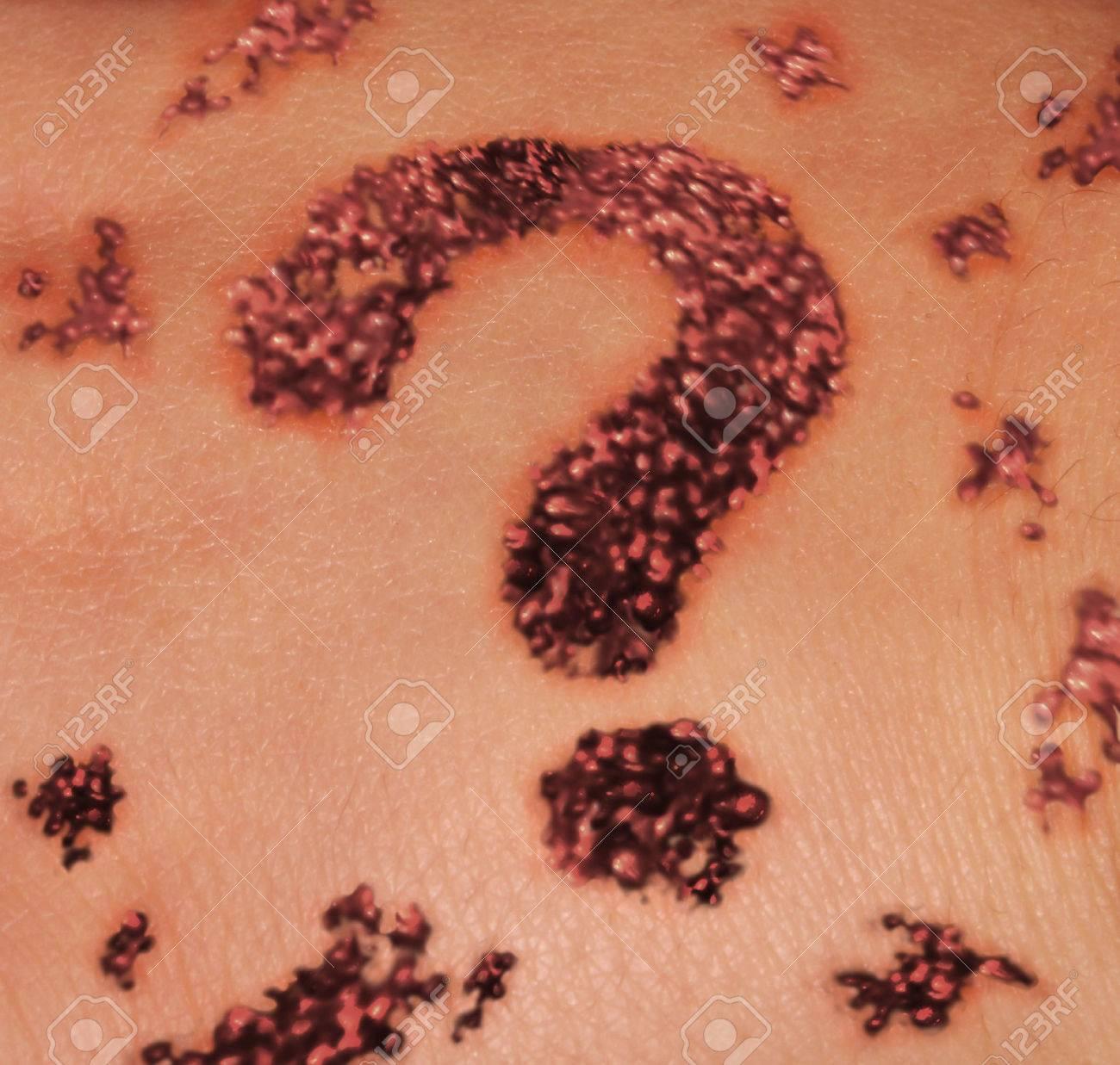 Lunar De La Piel Sospechoso Como Un Concepto De La Dermatología ...