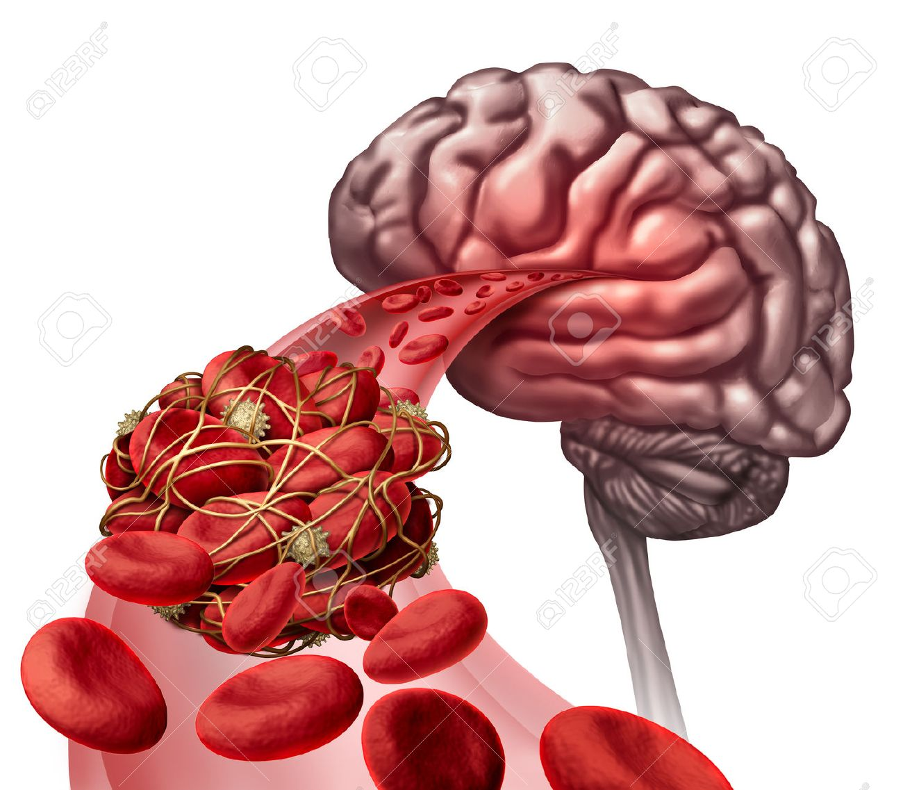 Brain blood clot medical concept as 3D illustration blood cells blocked by an artery blockage thrombus causing a blockage of blood flow to the neurology anatomy. Stock Illustration - 55128017