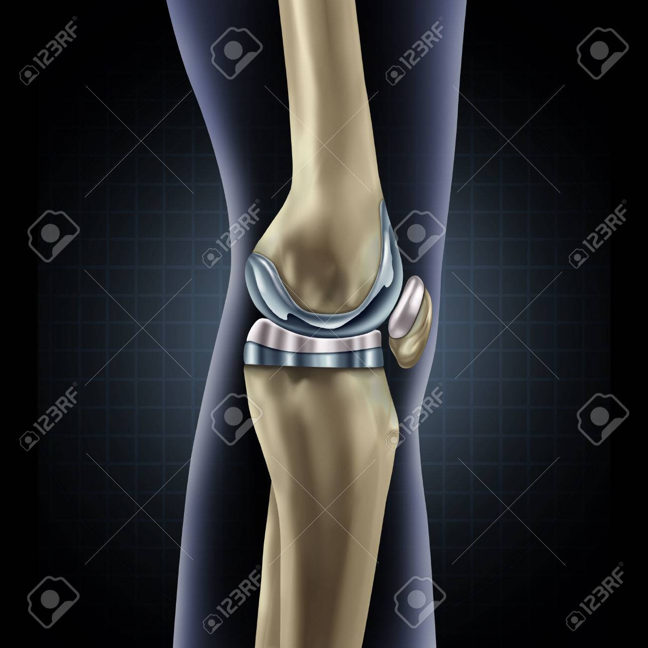 Knee replacement implant medical concept as a human leg anatomy after a prosthetic surgery as a musculoskeletal disease treatment symbol for orthopedics with 3D illustration elements. Standard-Bild - 56997807
