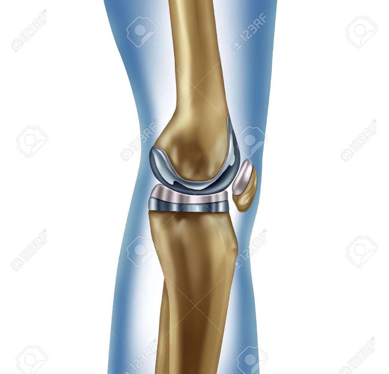 Reemplazo Implante De Rodilla Concepto Médico Como Una Anatomía De ...