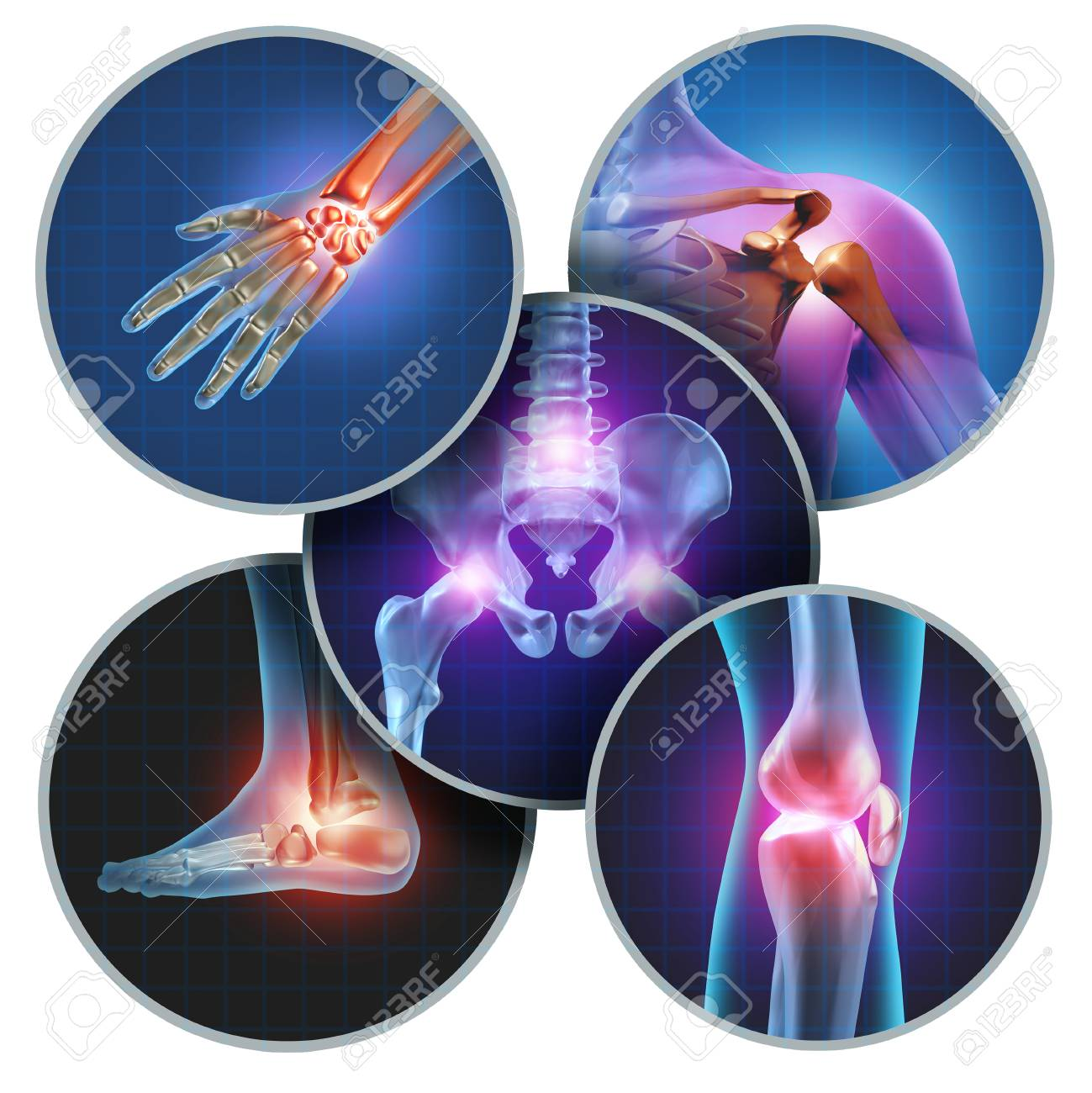 Human painful joints concept with the skeleton anatomy of the body with a group of sores with glowing joint pain and injury or arthritis illness symbol for health care and medical symptoms. - 94420754