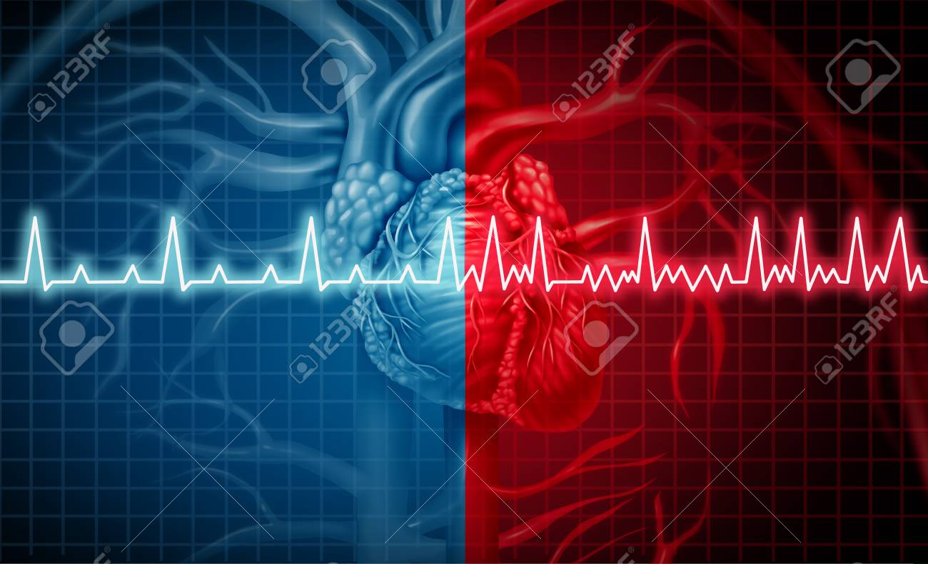 Atrial fibrillation and normal or abnormal heart rate rythm concept as a cardiac disorder as a human organ with healthy and unhealthy ecg monitoring in a 3D illustration style. - 99800146