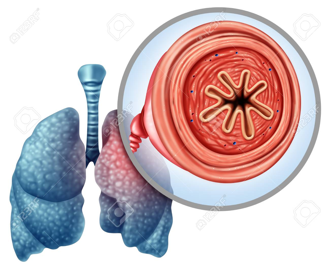 COPD chronic obstructive pulmonary disease as a medical concept for lung illness and emphysema with 3D illustration elements. - 101189288
