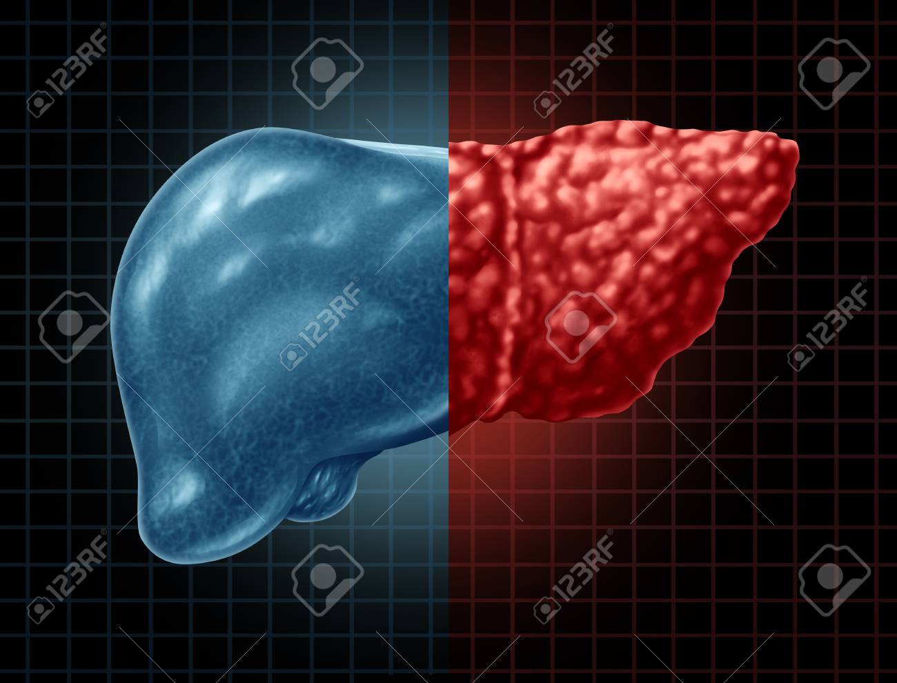 Fatty Liver Disease And Hepatic Steatosis Body Part As A Medical