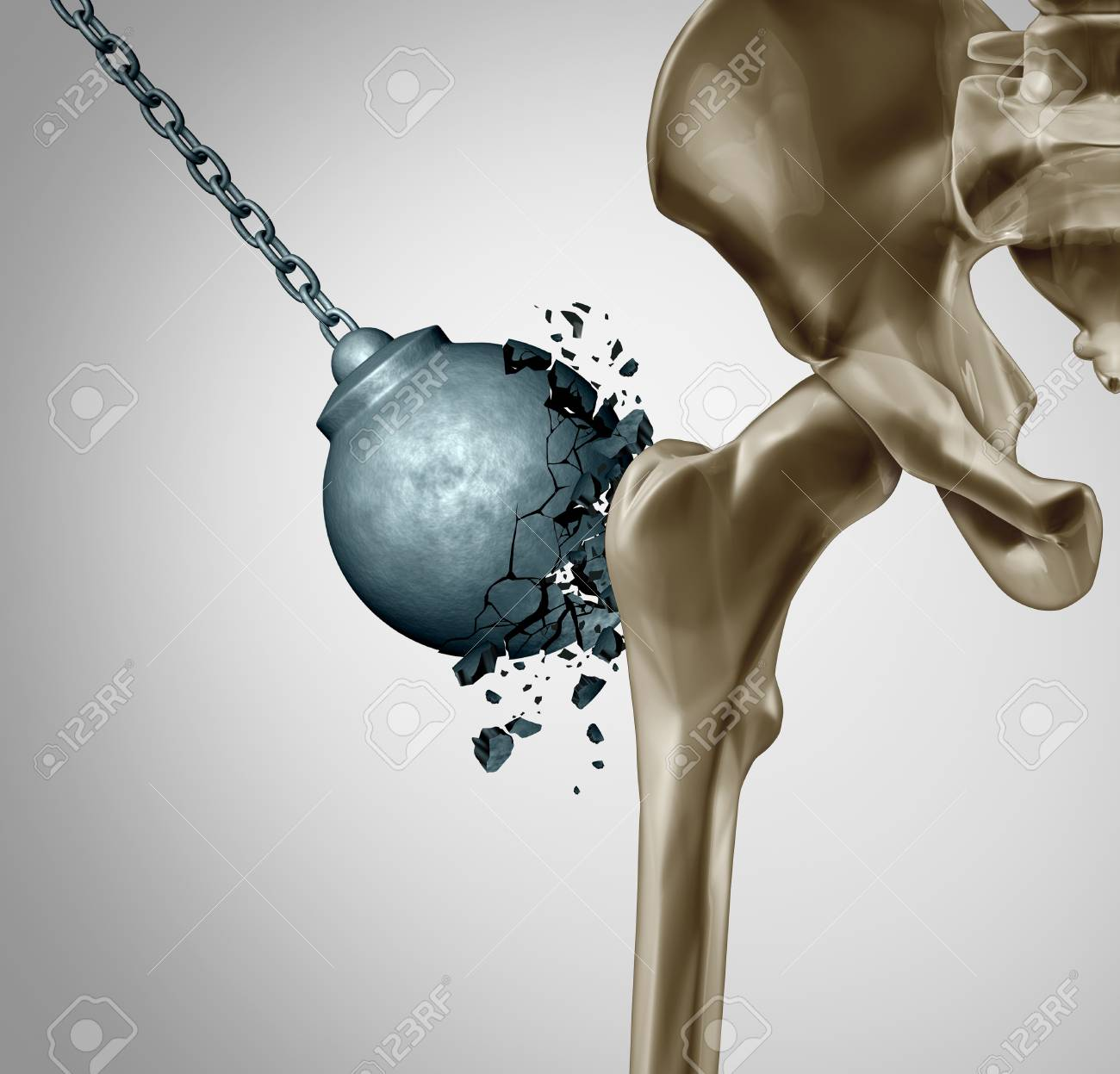 Strong bones and healthy human bone orthopedics and strength in mineral density medical concept as a wrecking ball destroyed by osteoporosis prevention medicine as 3D illustration. - 114695511