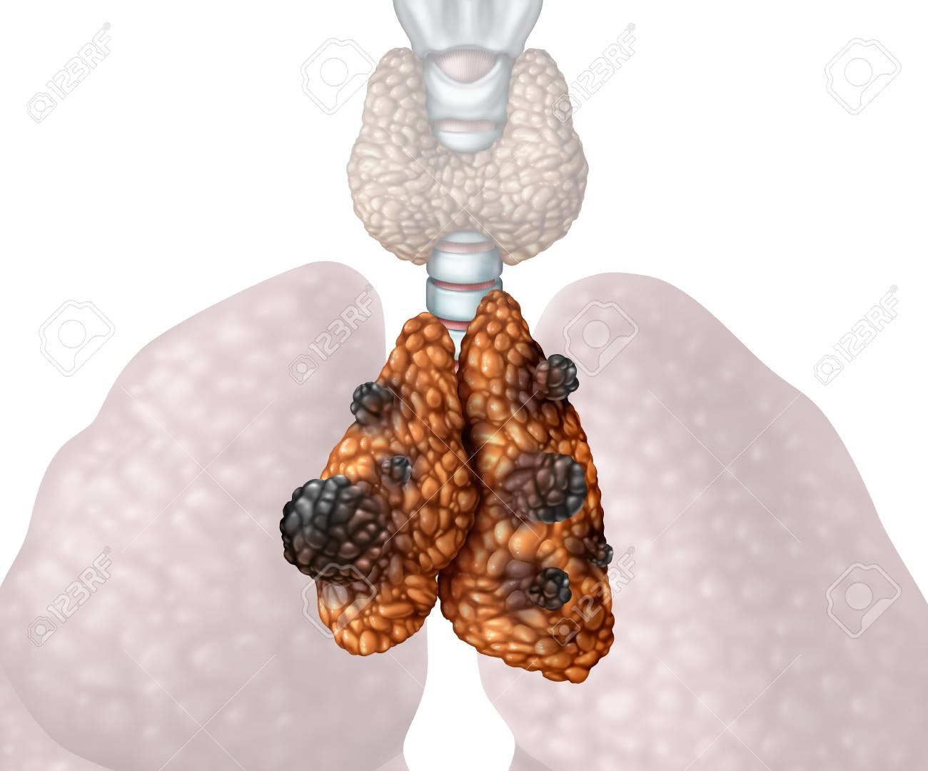 cancer piele malign