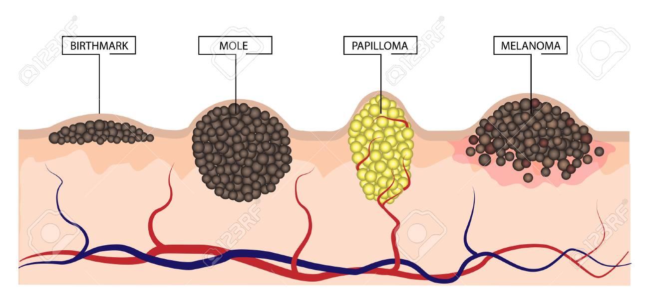 Cum se poate elimina papilomul pe cap