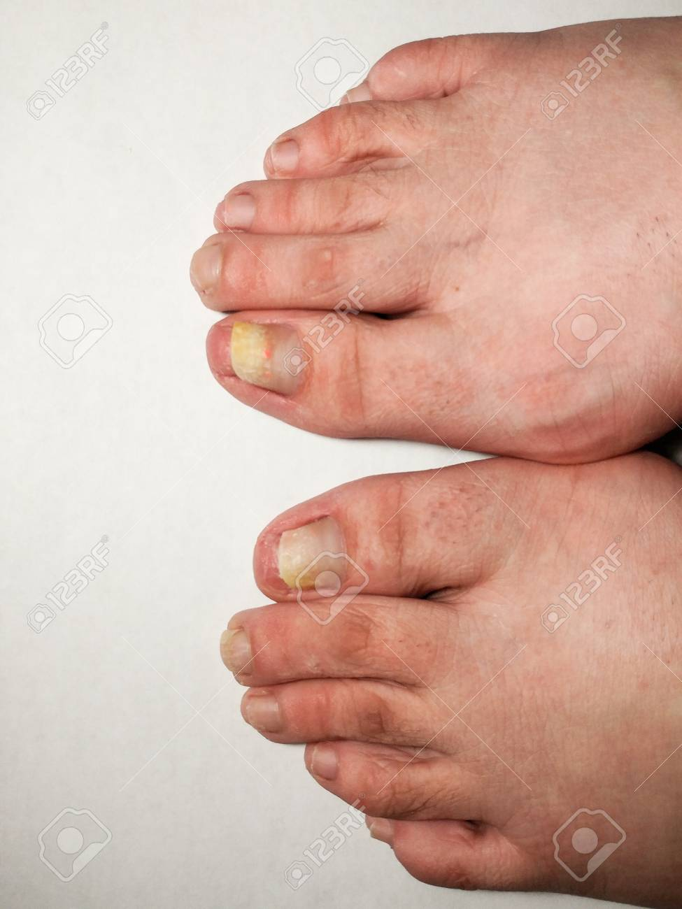 Clean Barefeet Isolated On White Background. Pedicure Process ...