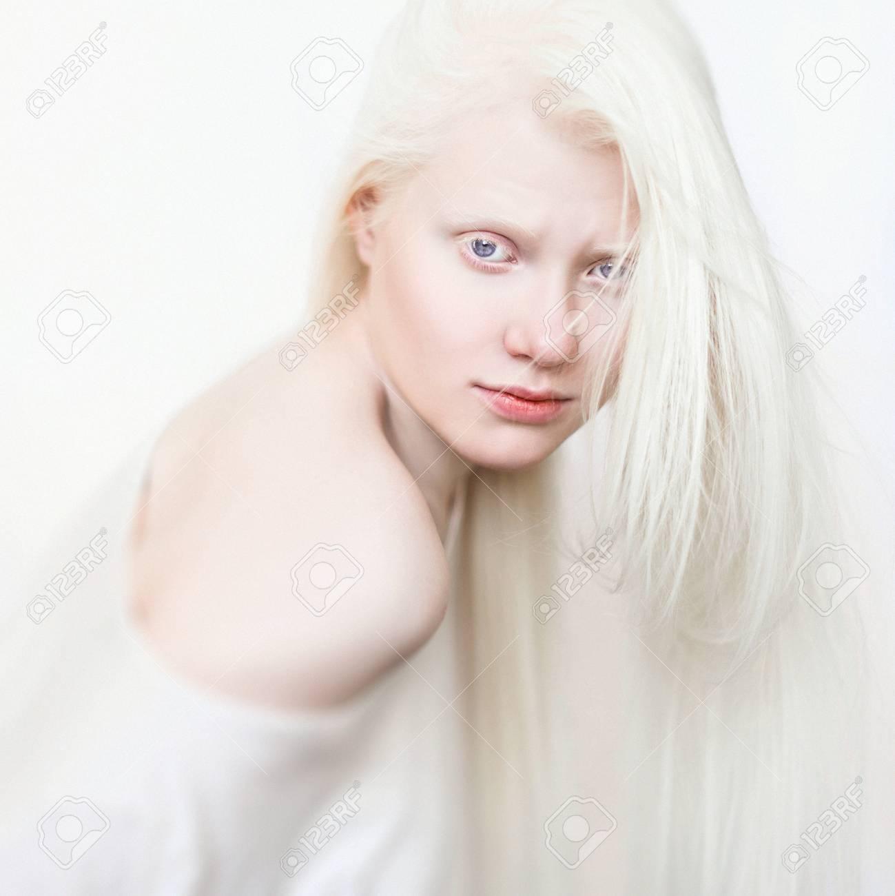 Sexy albino girls