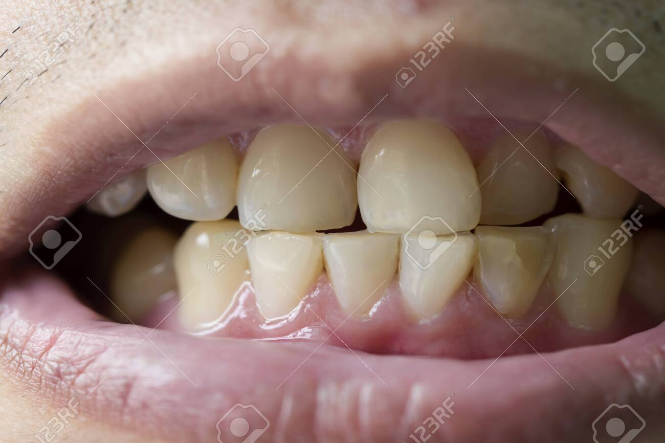 patient before prophylactic treatment, dirty brown teeth - 135311773