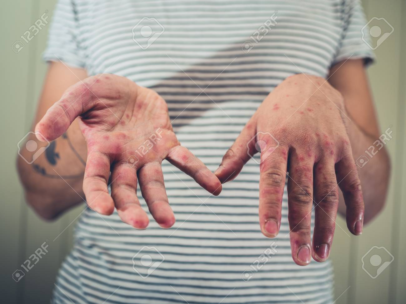 Flecken auf der hand