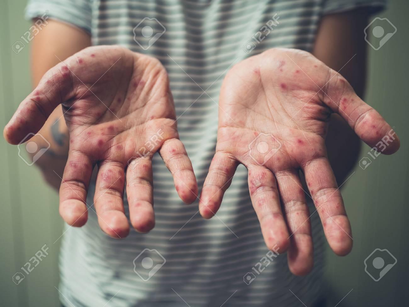 Der hand auf flecken Kurkuma