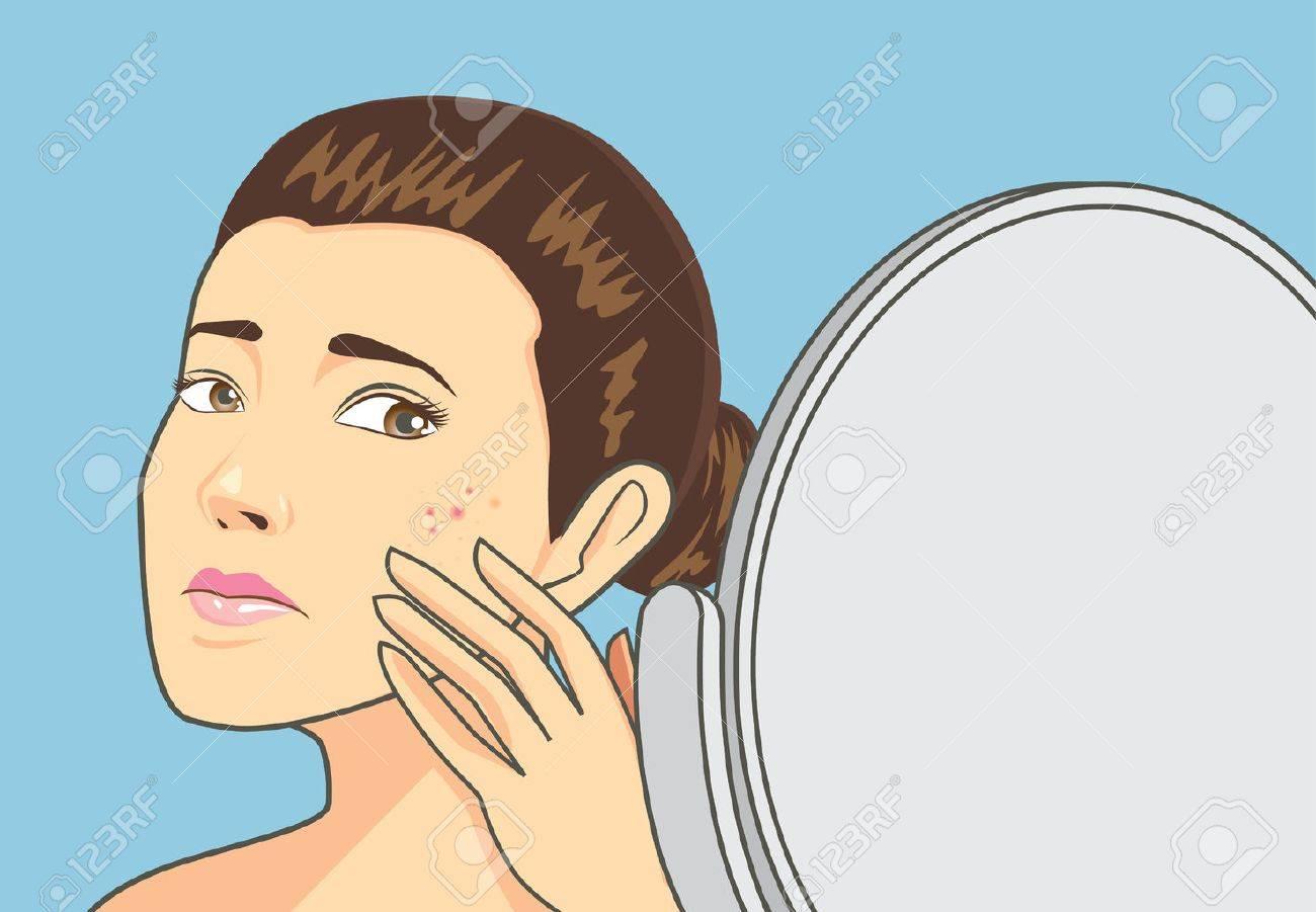 Frauen akne bei Akne vulgaris: