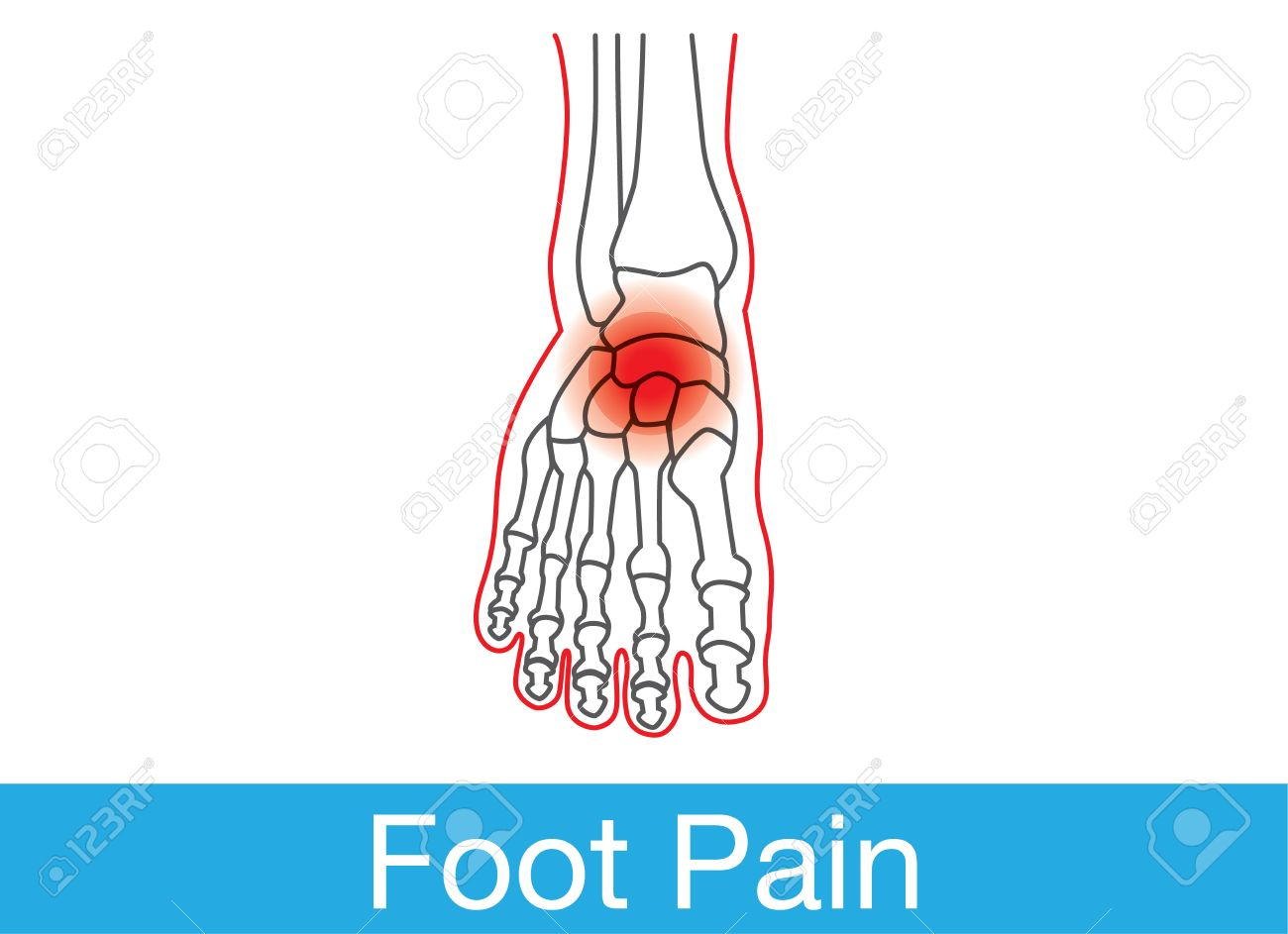 Outline Of Foot And Bone Which Have Pain On Top Of Foot. This ...