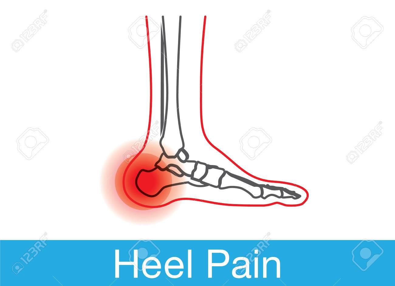 かかとの痛みがある足と骨のアウトラインこれは医療イラストですの