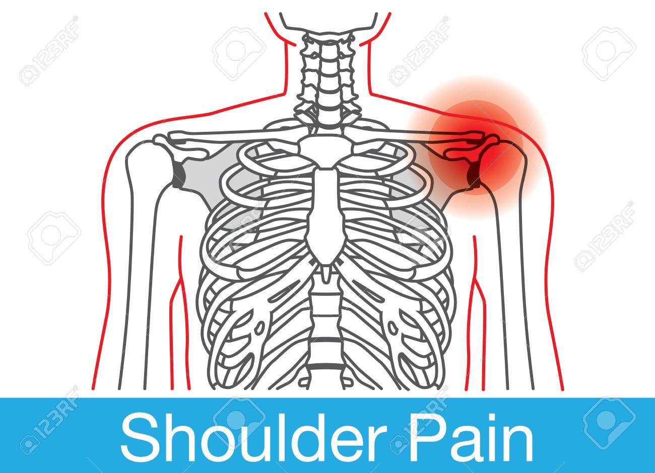 Outline Of Body And Bone Which Have Shoulder Pain From Lifestyle ...