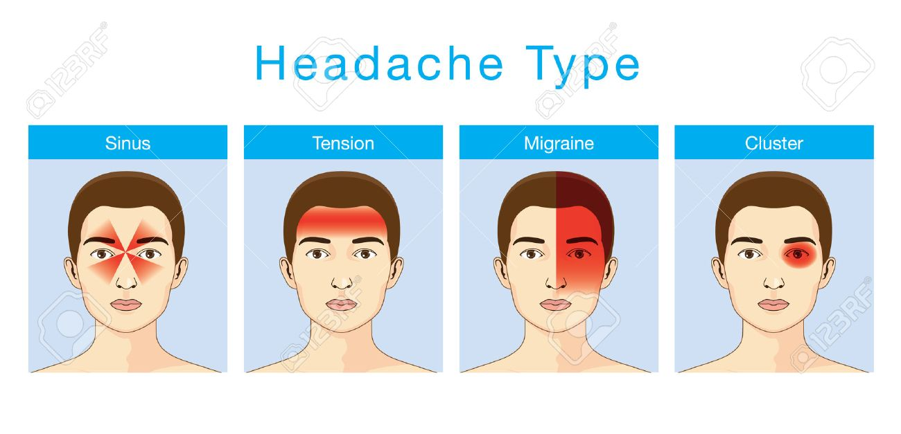 Illustration about headaches 4 type on different area of patient head. - 49995306