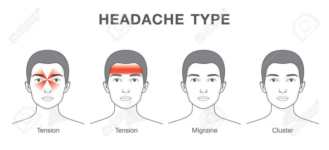 Céphalées Type 4 Sur Zone Différente De Head.Illustration Patient ...