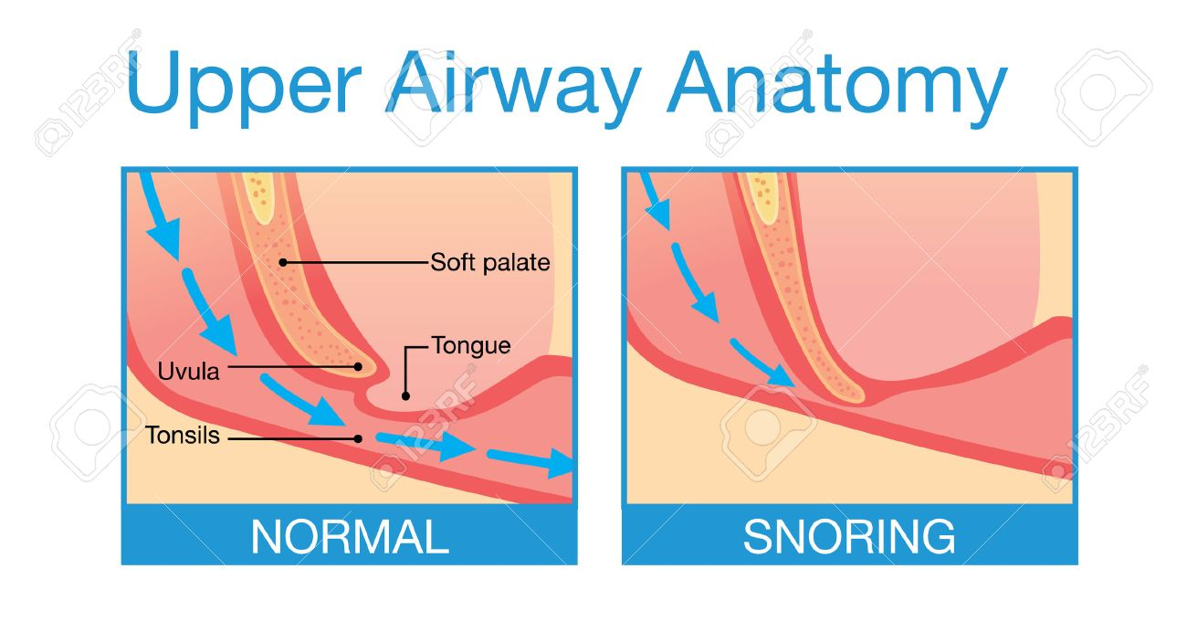 Upper Airway Human Anatomy In Normal Sleeping And Have Snoring ...