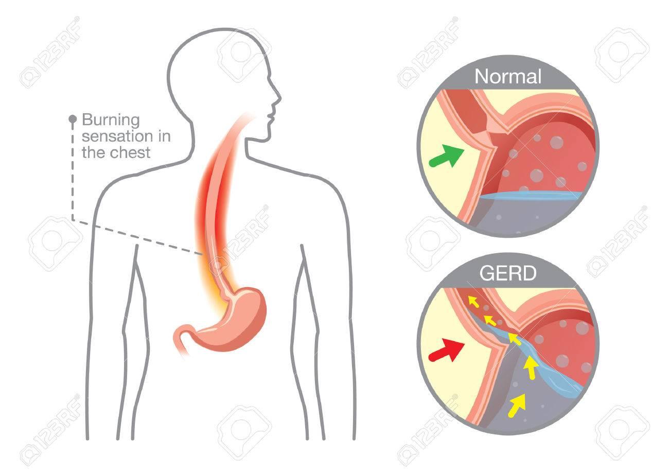 maladie oesophage estomac