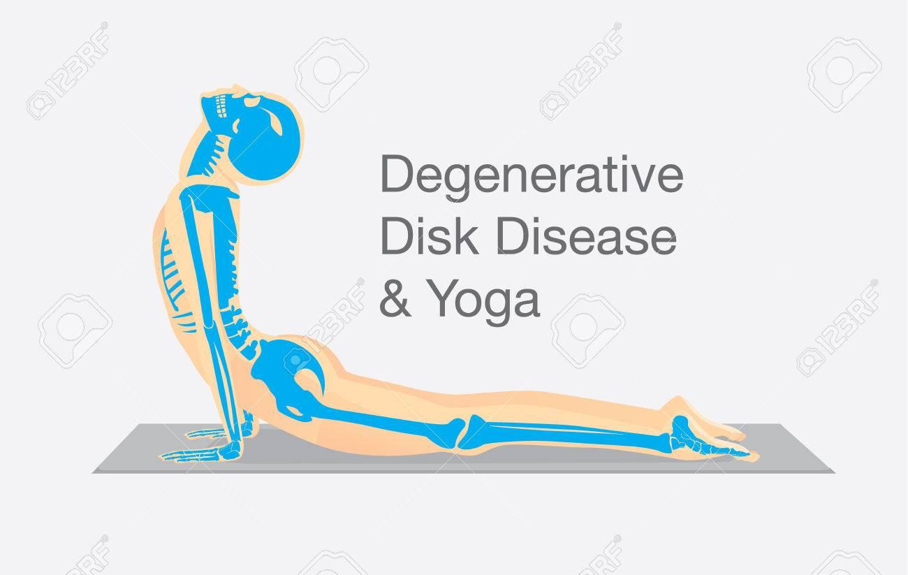 Anatomía ósea Humana, Mientras Sesión De Ejercicios De Yoga En La ...