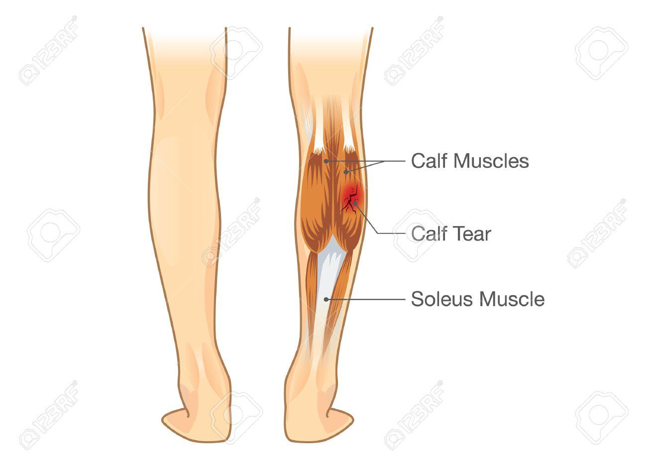 Desgarro Muscular De La Pantorrilla. Ilustración Sobre La Lesión En ...