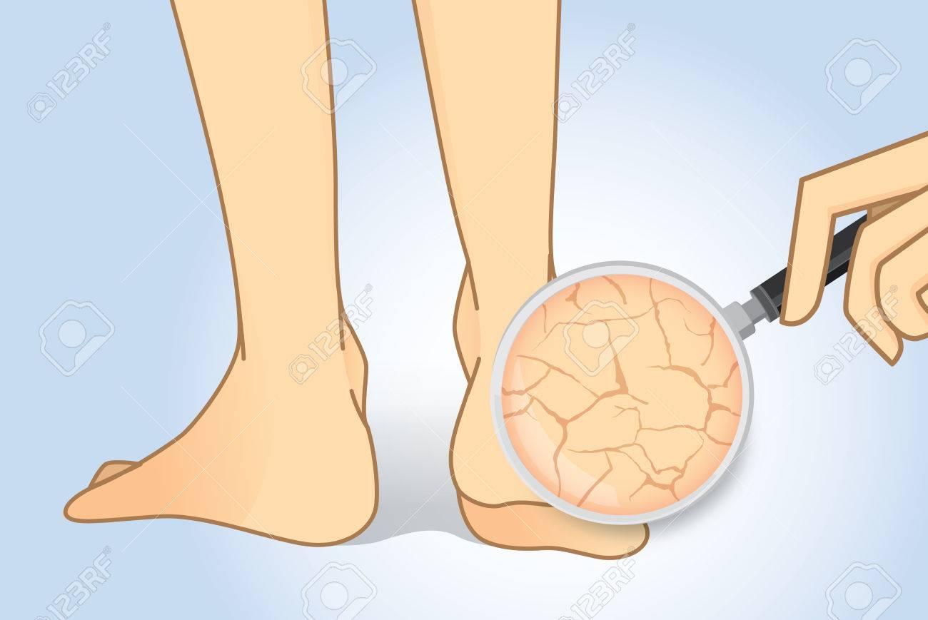 Zoom In Geknackt Ferse Mit Lupe. Illustration über Schönheit Fußhaut ...