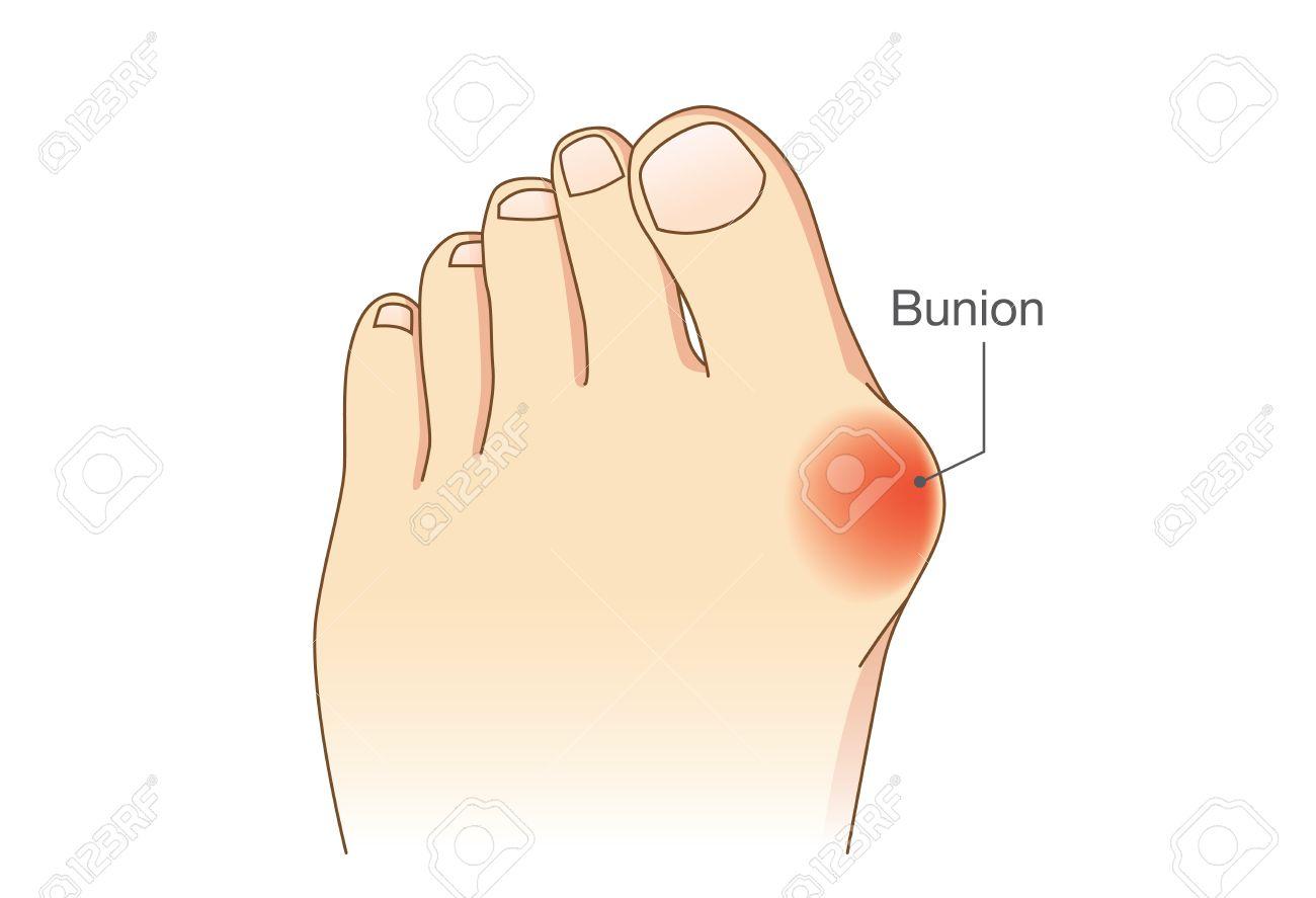 Bunion An Den Seiten Des Fußes. Knochen Und Haut An Den Seiten Des ...
