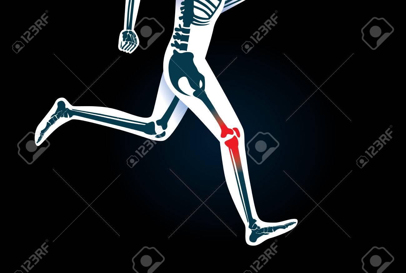Lesiones Del Hueso De La Rodilla Y De La Pierna, Mientras Que Correr ...