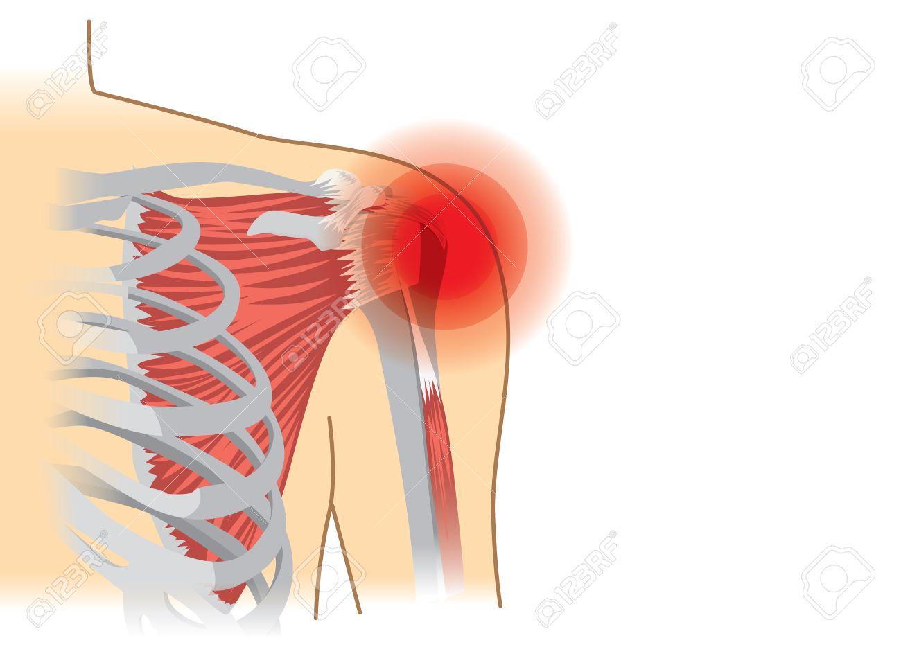 Los Músculos Del Hombro Y Las Articulaciones Humanas Tienen Una ...