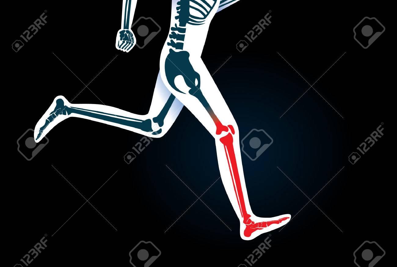 Menschliches Bein Knochen Und Fuß, Während Lauf Haben Ein Rotes ...