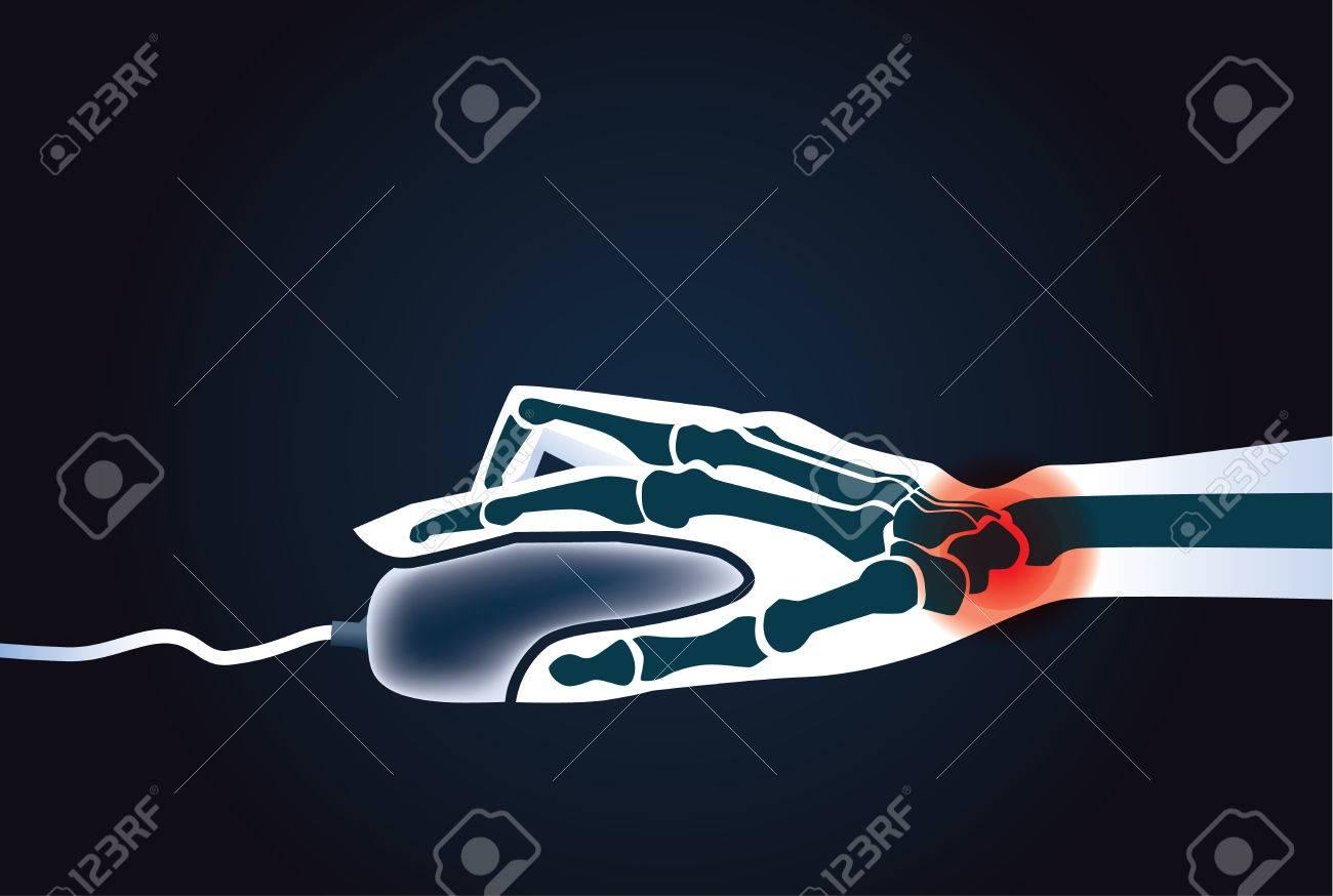 Handgelenk-Knochen Haben Eine Rötung Signal, Während Sie Mit Der ...