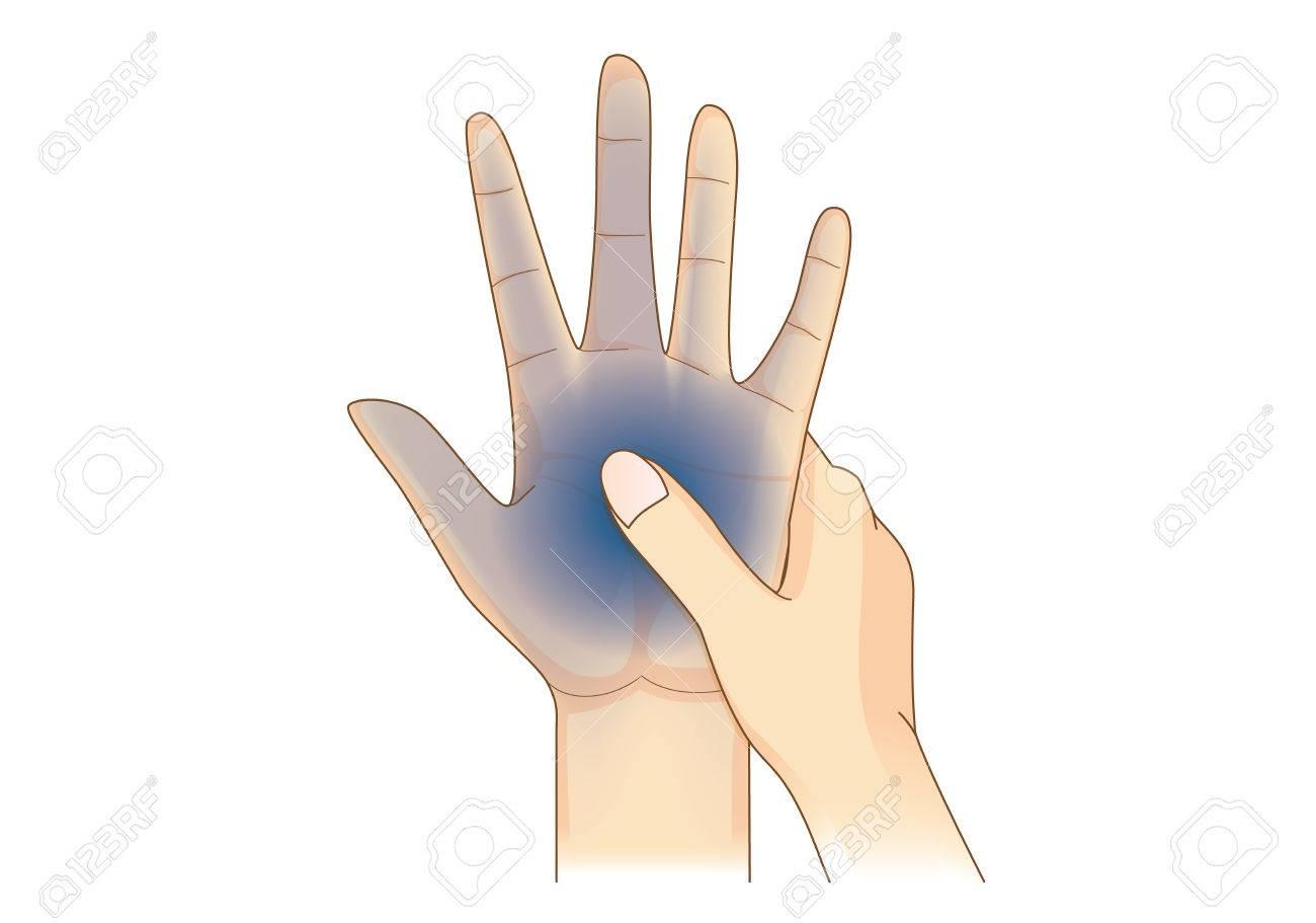 Hand Hebben Gevoelloosheidssymptomen Geïsoleerd Op Wit. Illustratie ...