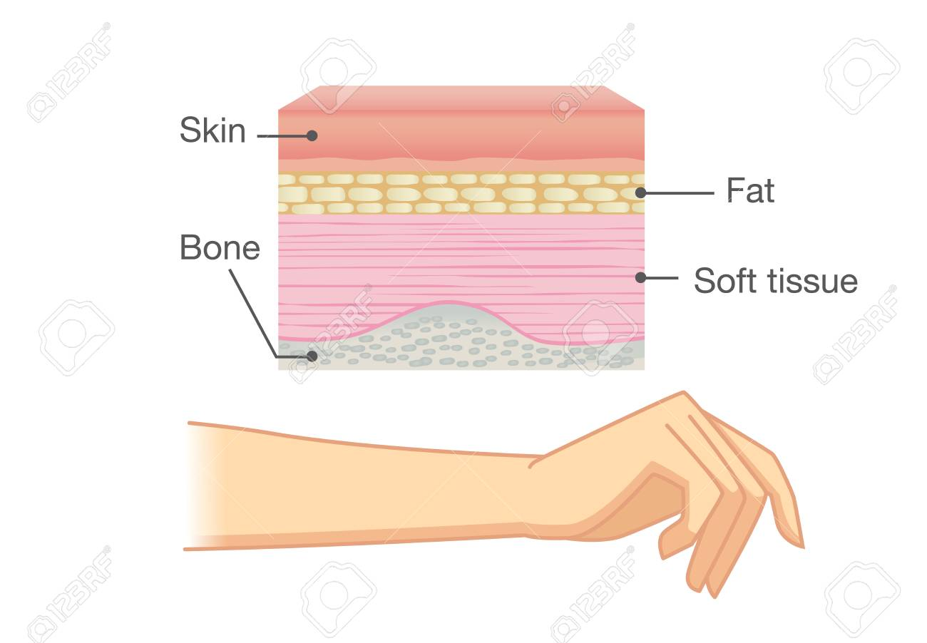 Anatomy Of Human Skin Layer And Arm Isolated On White Ideal