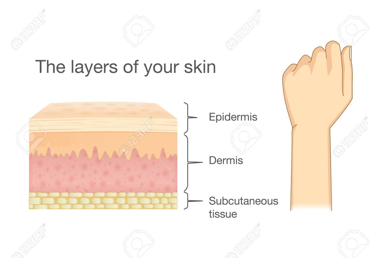 Anatomy Of Human Skin Layer And Arm Isolated On White. Ideal ...