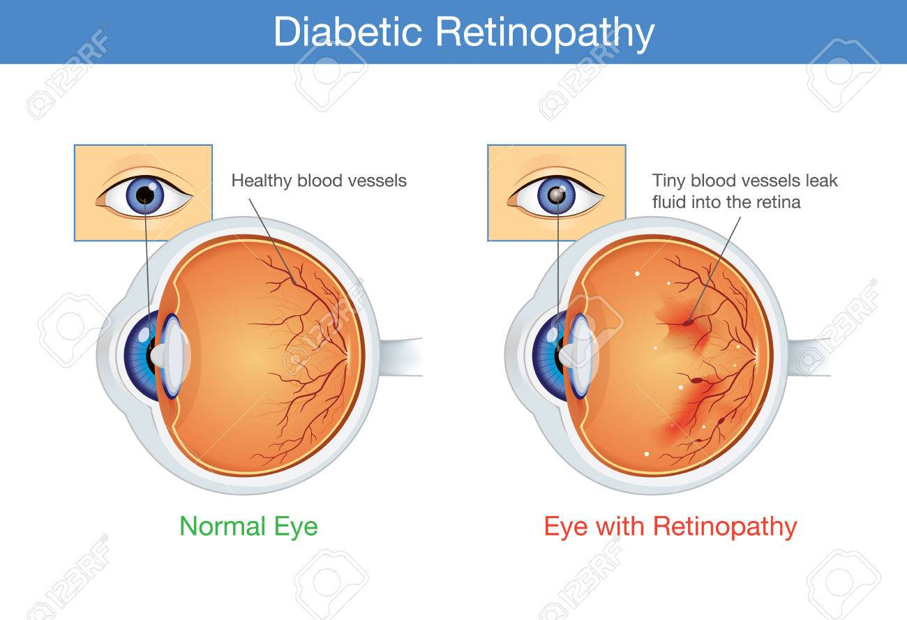 Anatomy Of Normal Eye And Diabetic Retinopathy In People Who ...