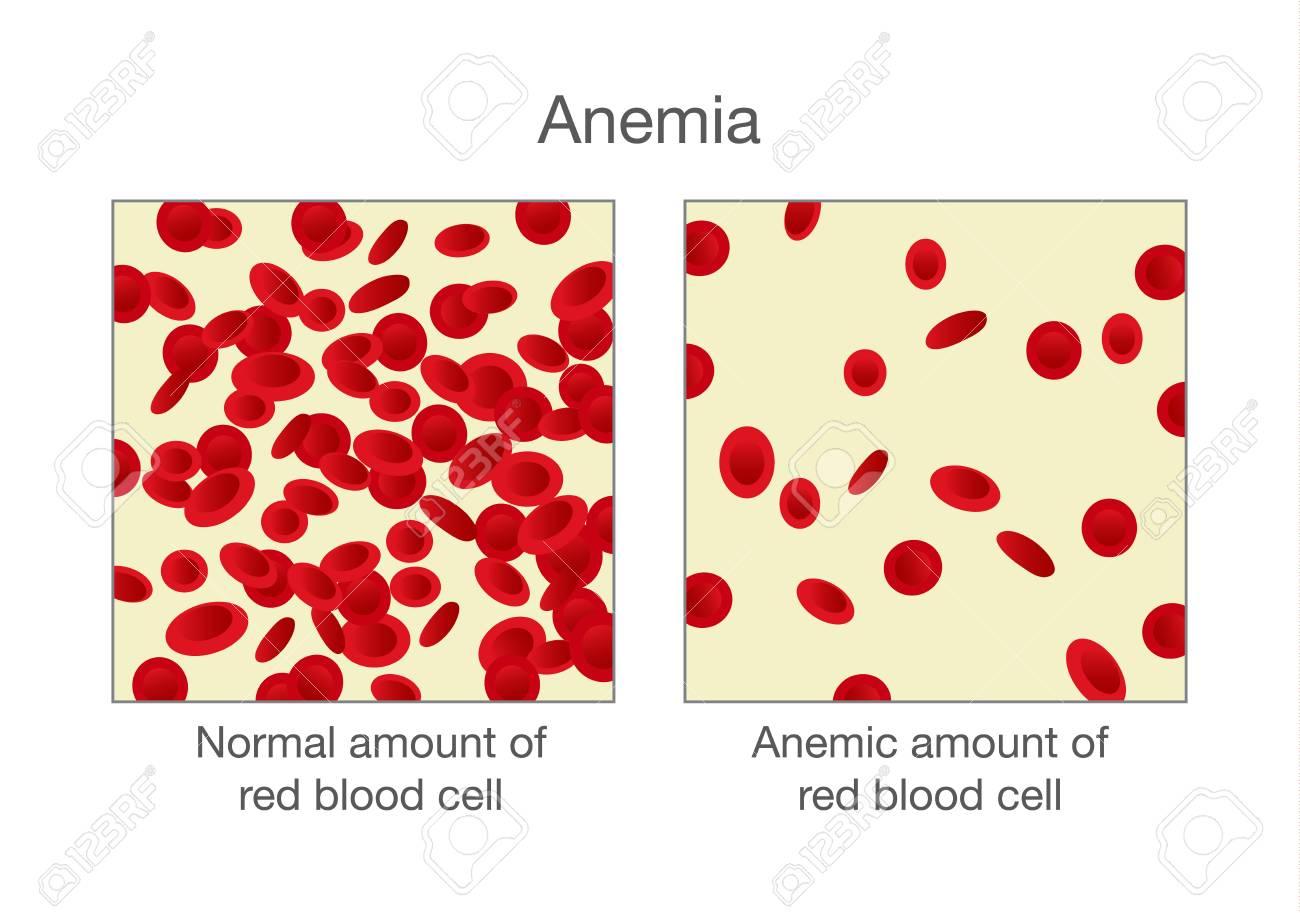 La Diferencia De La Cantidad Normal De Glóbulos Rojos Y Anemia. Ilustración  Sobre Médico. Ilustraciones Vectoriales, Clip Art Vectorizado Libre De  Derechos. Image 88077139.