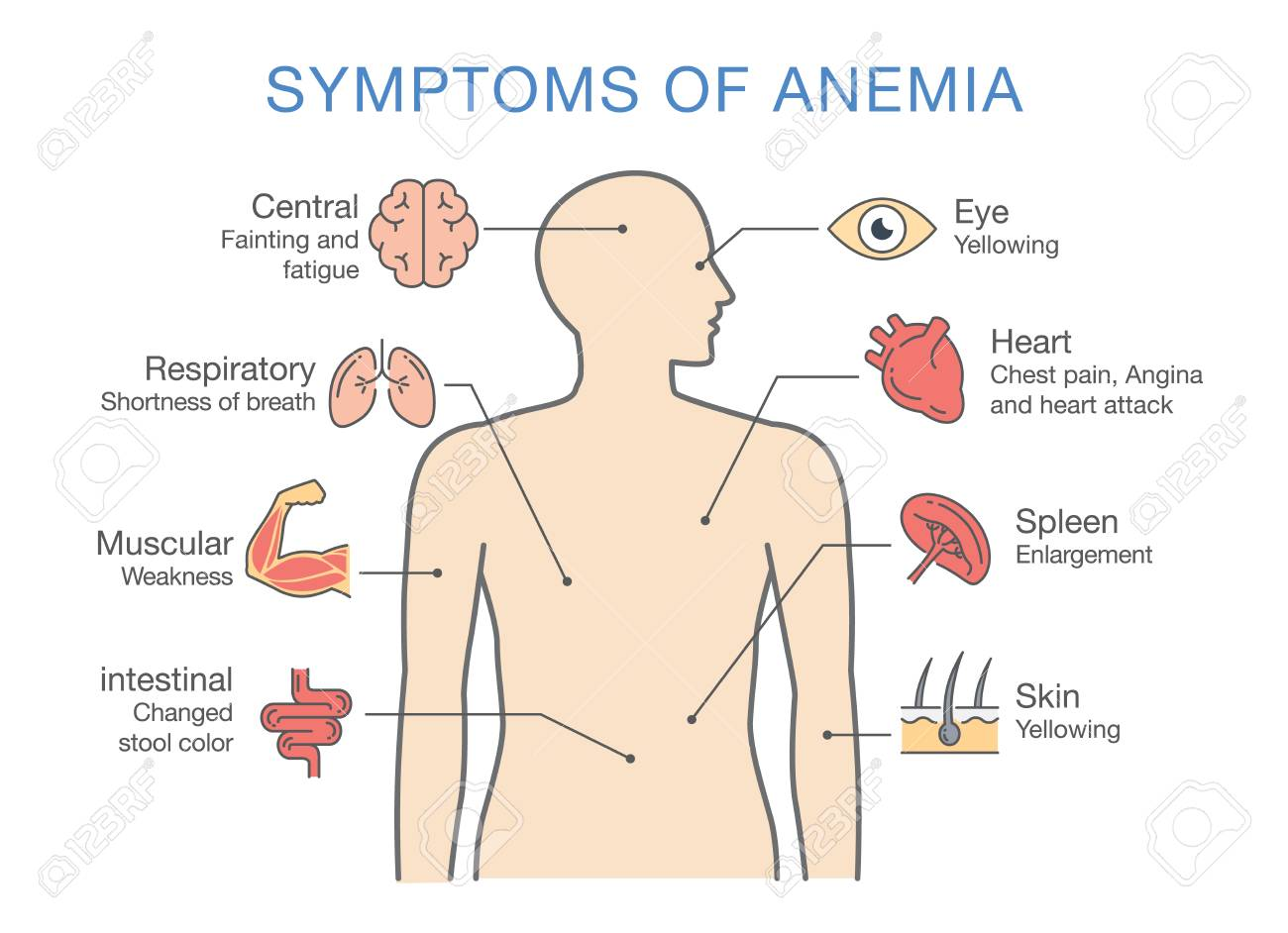 The most common symptom of anemia illustration about medical illustration about medical diagram for diagnose a disease or ccuart Gallery