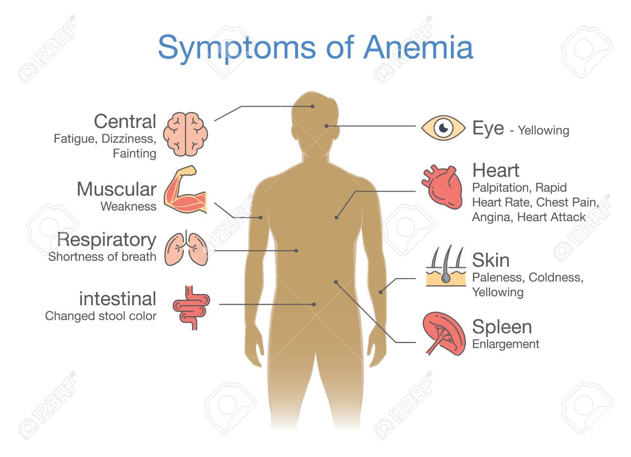 Symptoms common to many types of anemia illustration about medical symptoms common to many types of anemia illustration about medical diagram for diagnose a disease ccuart Gallery