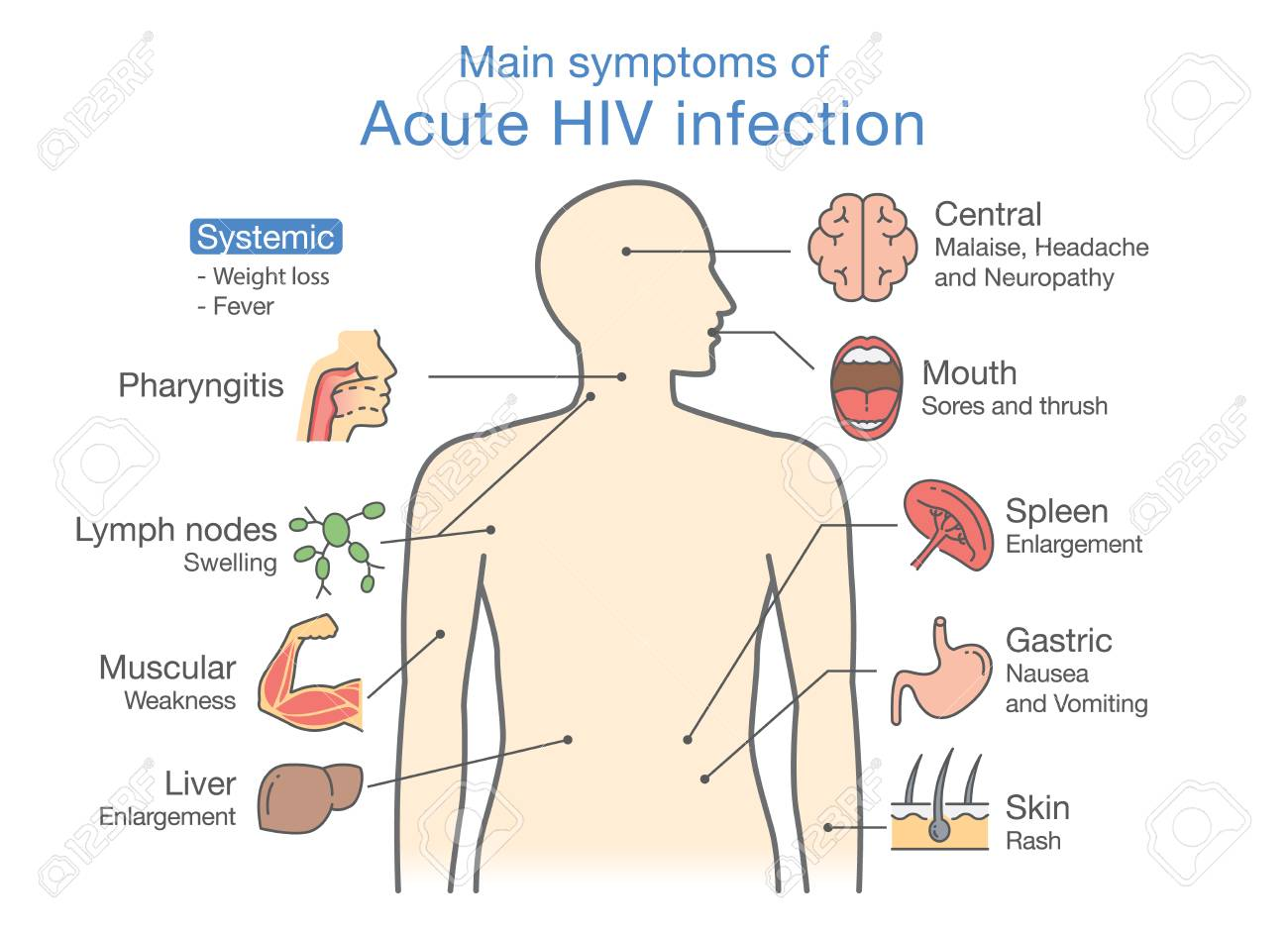 symptom för hiv