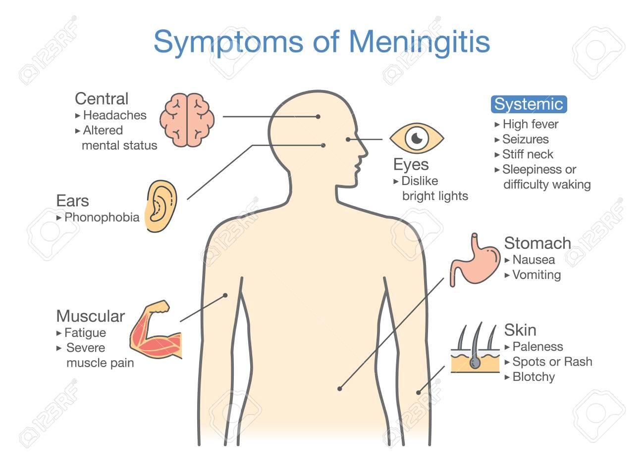 Symptomen Van Meningitis Patiënt Schema Van Tekenen Van Ziekte