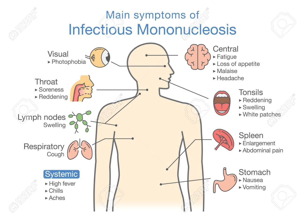 Symptoms of infectious mononucleosis disease diagram for diagnose symptoms of infectious mononucleosis disease diagram for diagnose patient of doctor stock vector pooptronica Image collections