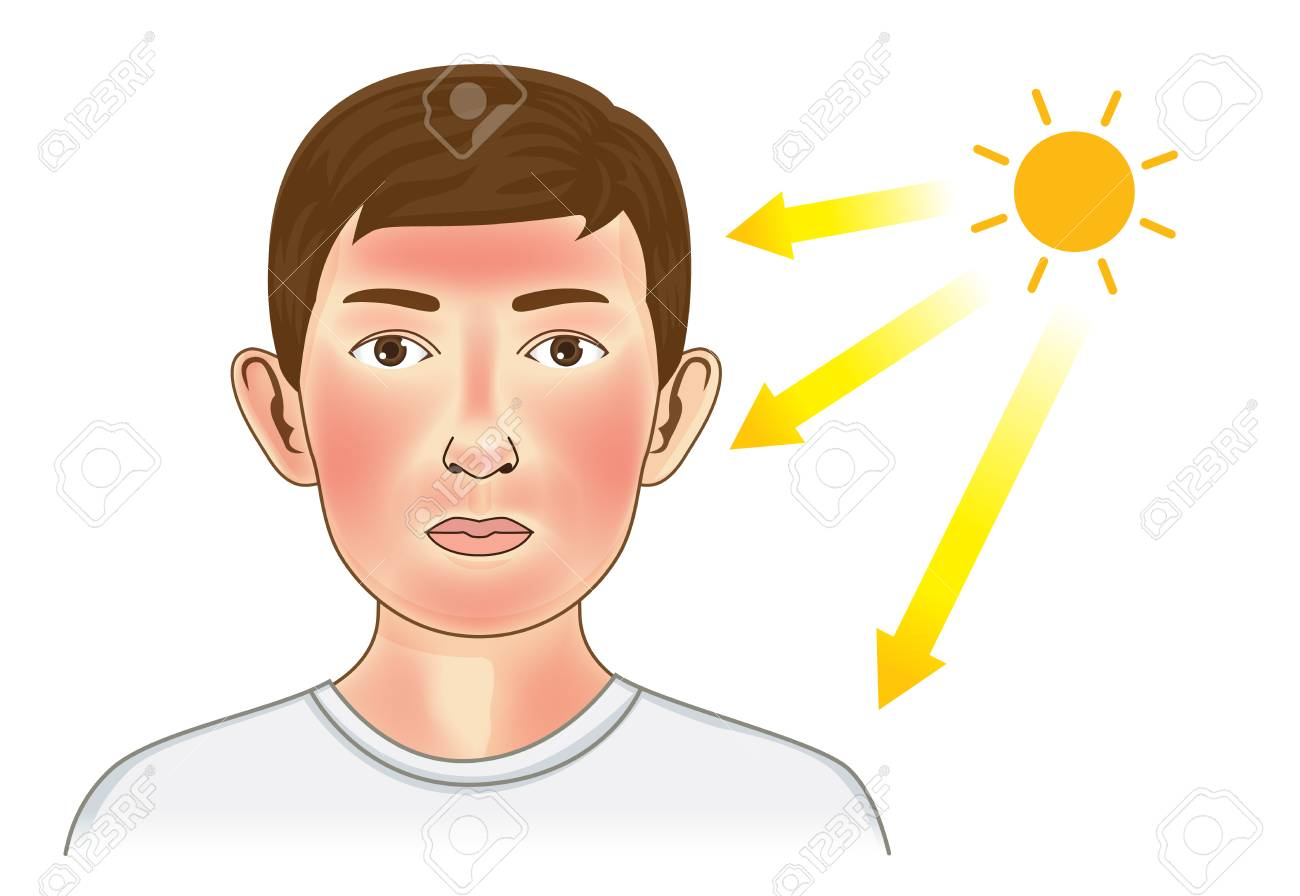 Los Rayos Ultravioleta Del Sol Hacen Que Aparezca El Enrojecimiento En La  Piel Del Niño Y Del Cuello. Ilustración Sobre El Peligro De Los Rayos UV.  Ilustraciones Vectoriales, Clip Art Vectorizado Libre