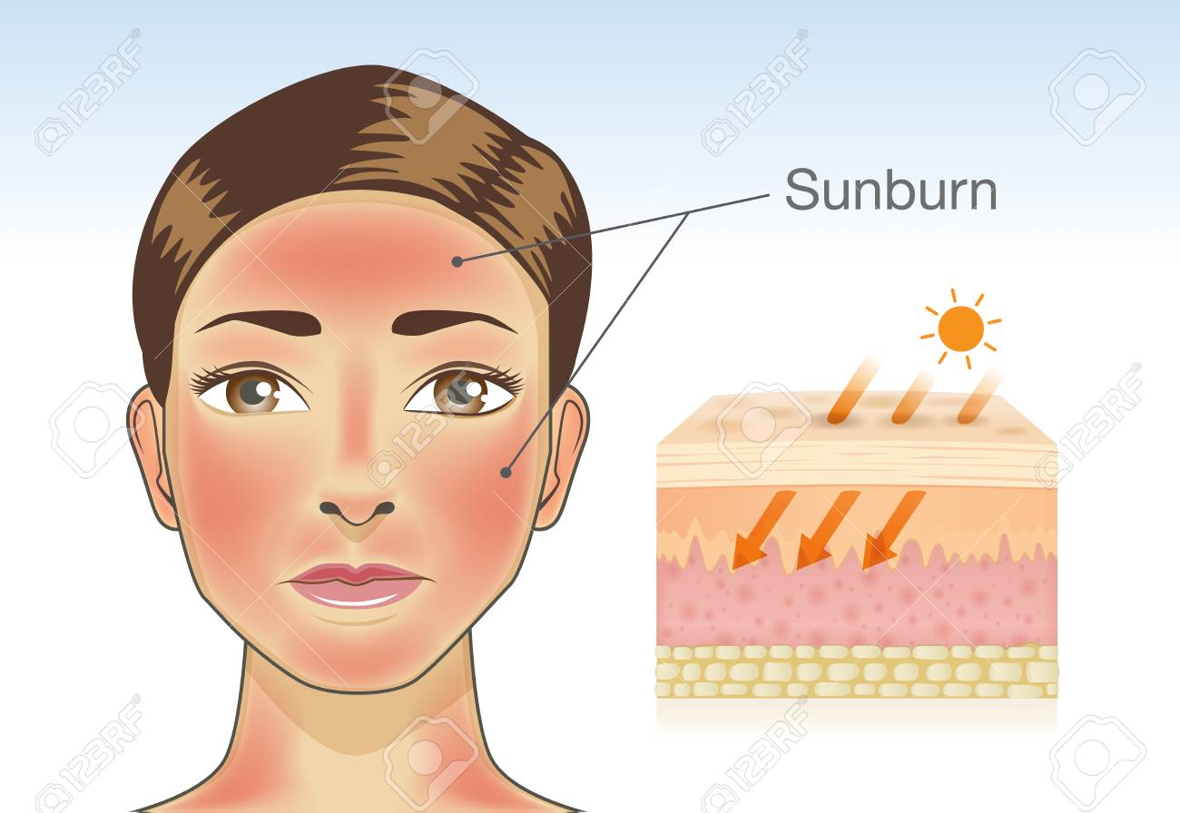 Skin layer of woman which appear redness on facial and neck from sunburn. Illustration about danger of Ultraviolet radiation. - 90937457