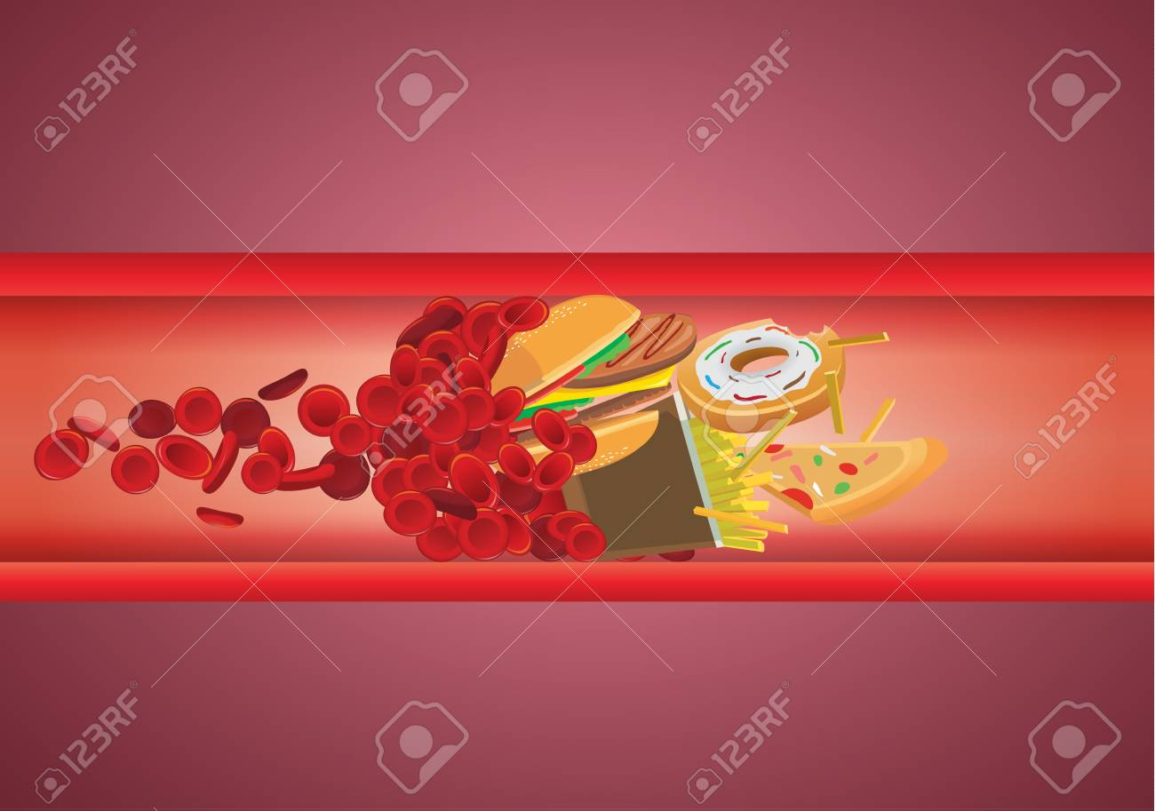 Blood flow blocked from fast food which have high fat and cholesterol. Illustration about unhealthy eating. - 92714929